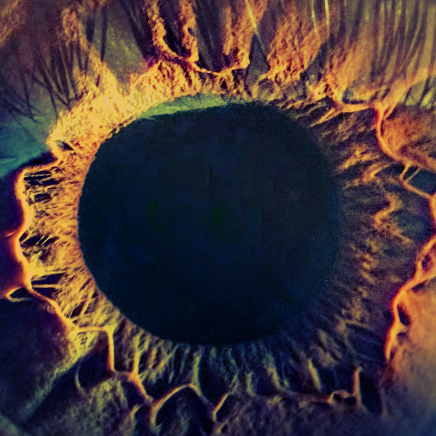 Automation And Deep Learning For Diabetic Retinopathy Screening
